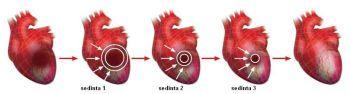 cardioefort