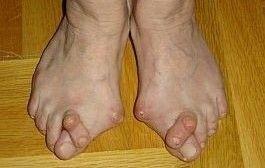 picior reumatoid, marius uscatu